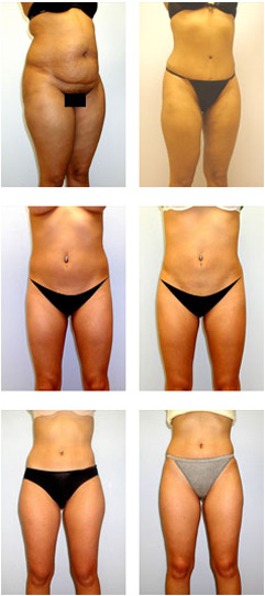 liposuction capella plastic surgery ramsey nj